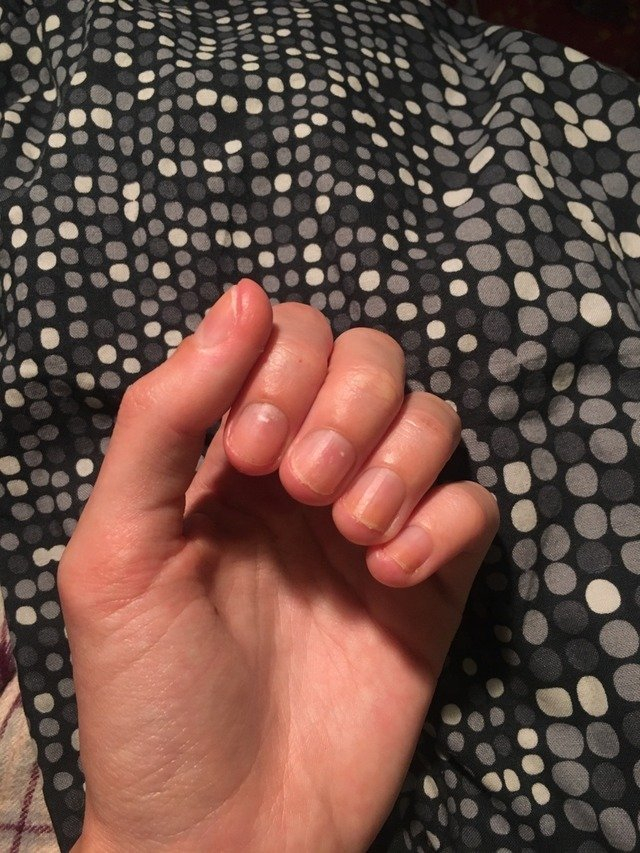 One Day At A Time — Guess Who Bit All Their Nails Off 4 Month Delivery Guess Date